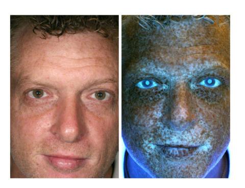 Nätverket mot cancer uppmanar meteorologer och media: Hjälp oss väcka svenskarna i solstolarna genom dagliga rapporter om UV-index