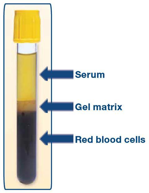 La récupération de serum dans les tubes à gel séparateur ...