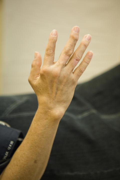 Solveig Wållberg Jonsson prisas för forskning om reumatoid artrit