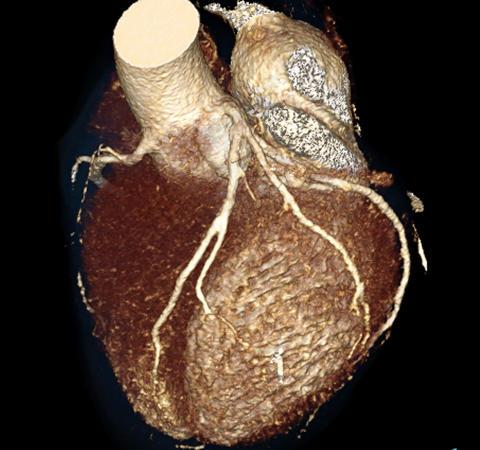 Hjärta med kranskärl från datortomografiundersökning