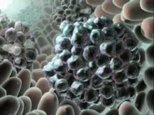 Glivec blockerar aktiviteten hos c-Kit, ett enzym som stimulerar cancercellerna att dela sig ohämmat