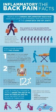 Ny behandling godkänd för svår ryggsjukdom