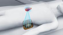 Ultraääni – uusi solumuutosten hoitomenetelmä