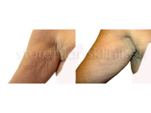 Restylane för överarm: Före och Efter | Stureplanskliniken