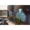 Förnyad upphandling av mammografiscreening och bröstdiagnostik