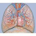 Nya biomarkörer kan ge bättre behandlingsmöjligheter för allvarlig hjärt- och lungsjukdom