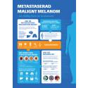 Infographic hudcancer: Metastaserad (spridd) malignt melanom