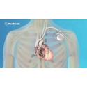 Forskare hittar genetisk orsak till plötslig hjärtdöd