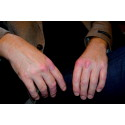 Regeringen fastslår riktlinjer för psoriasis