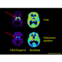 Mer träffsäker Parkinsondiagnos med ny PET-teknik