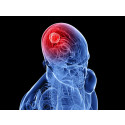 Brain Cancer Market Research Report- Pipeline Review, H1 2015