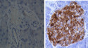 Islets from diabetic mice