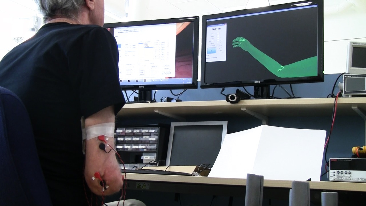 Treatment of phantom limb pain, broadcast version without effects