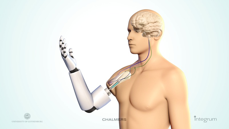 Ny avancerad teknik ger stora förbättringar med robotproteser